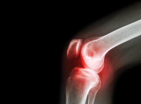 cikk térd artrózis