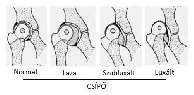 csípő dysplasia, ahol kell kezelni