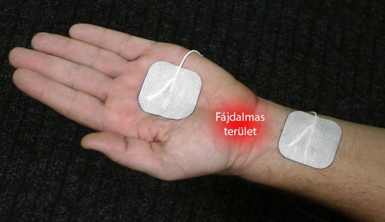 csukló sérülés kezelése
