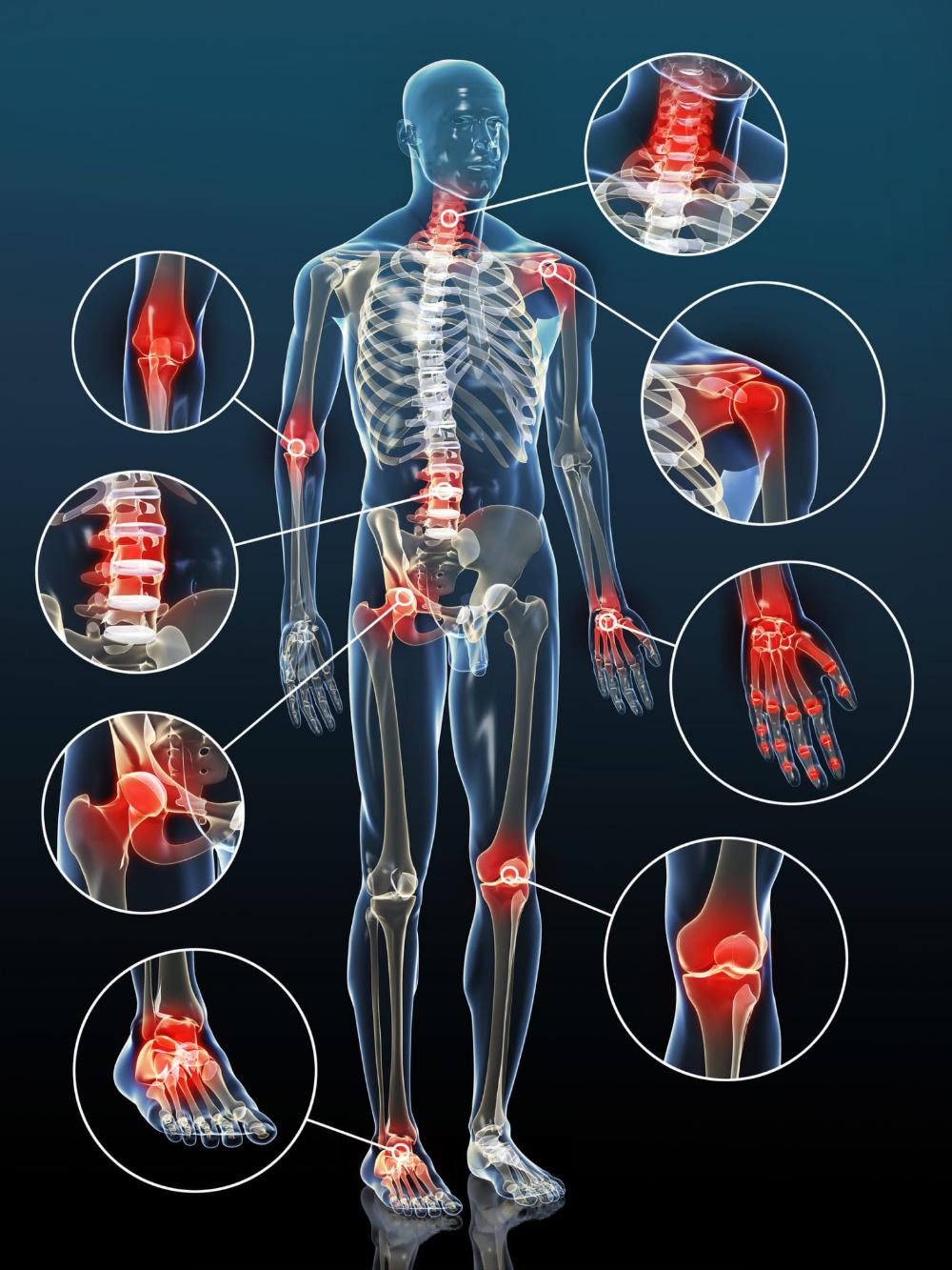 ayurveda arthrosis kezelés)