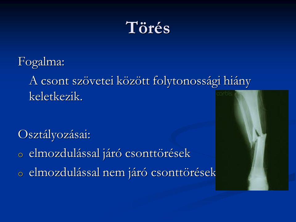 ízületi sérülések formái jellemző tünetei