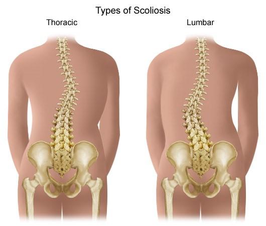 ahol a fájdalom a csípőízület artrózisával jár