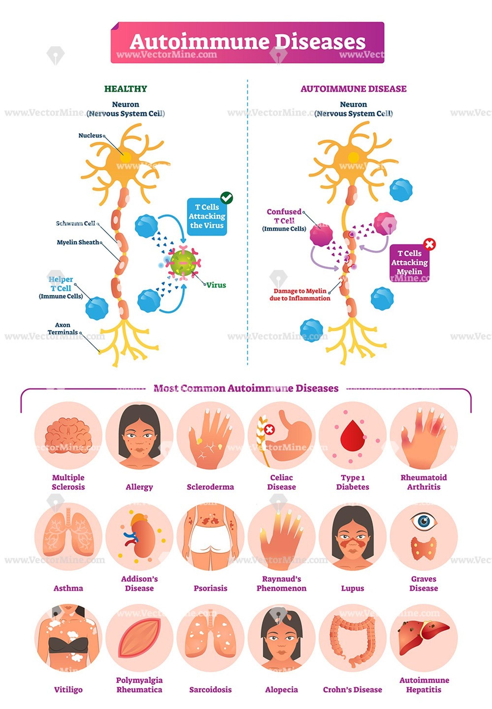 arthrosis bischofite kezelés)