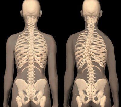 gyakorlatok az ágyéki területre homeopátia a kéz ízületeiben fellépő fájdalomra