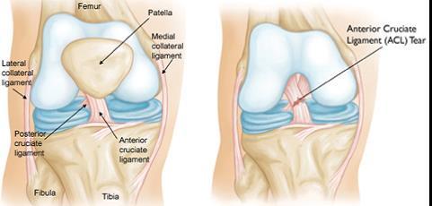a térdízület kezelésének meniszkuszának részleges törése