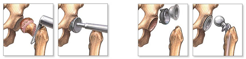deformáló artrosis a csípő kórtörténetében