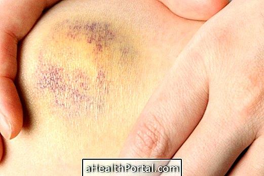 fájdalmak a csípőcsontokban és ízületekben hogyan és hogyan kell kezelni a lábízületeket