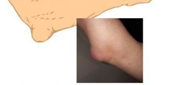 duzzanat és fájdalom a könyökízület