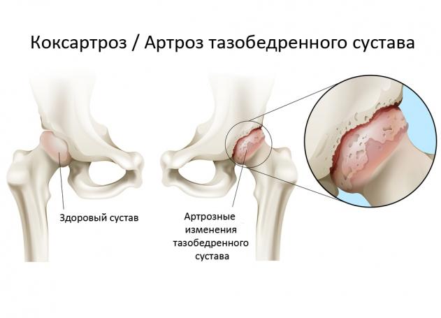 коксартроз лечение препараты