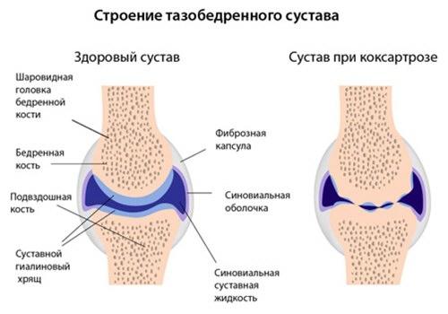 deformáló artrózis a csípőízület 1-2 fokos