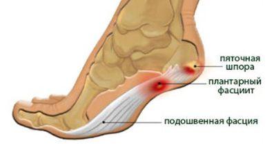 kezelés, ha a lábízület fáj
