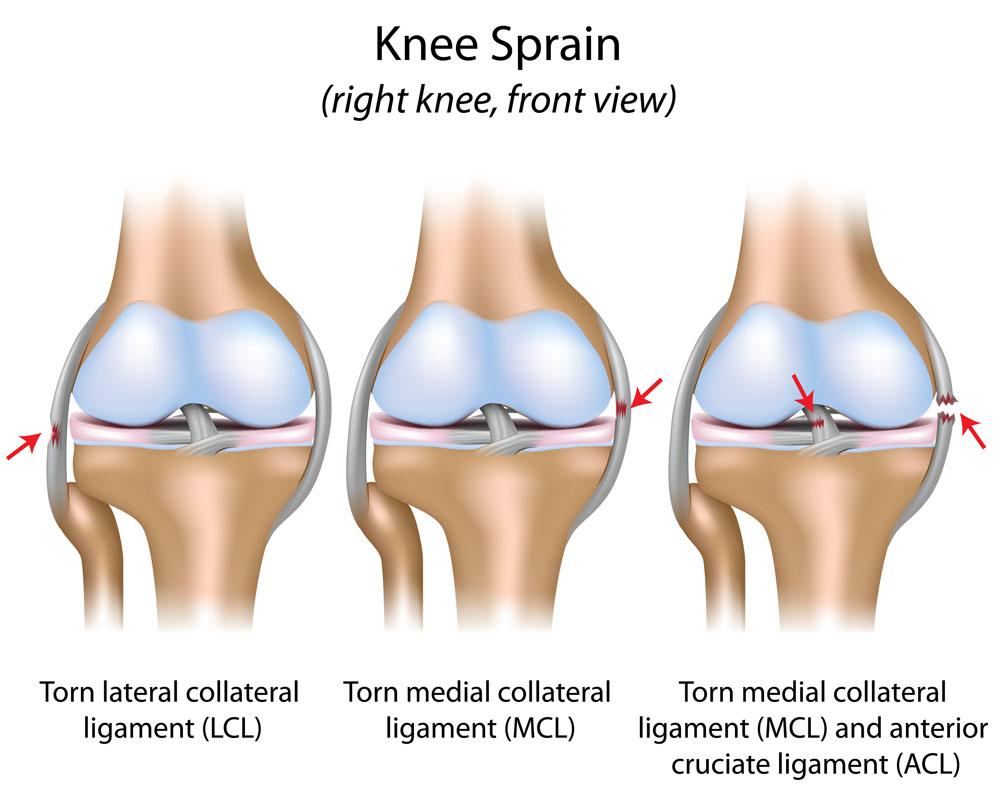 Térd elülső keresztszalagjának (LCA) sérülései – a fizioterapeuta válaszol | YouCoach