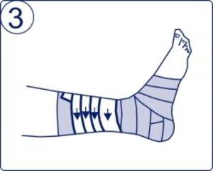 a bokakötések rugalmas kötésének károsodása