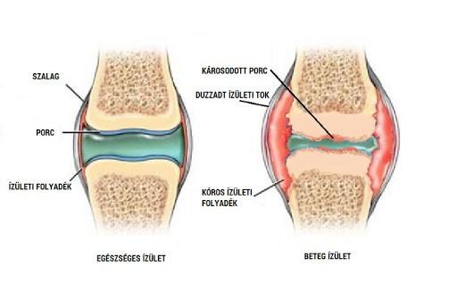 térdízület bursitis és synovitis kezelése)