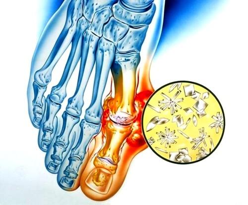 gonarthrosis boka kezelése)
