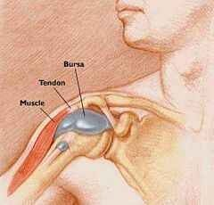 térd bursitis betegség kezelése