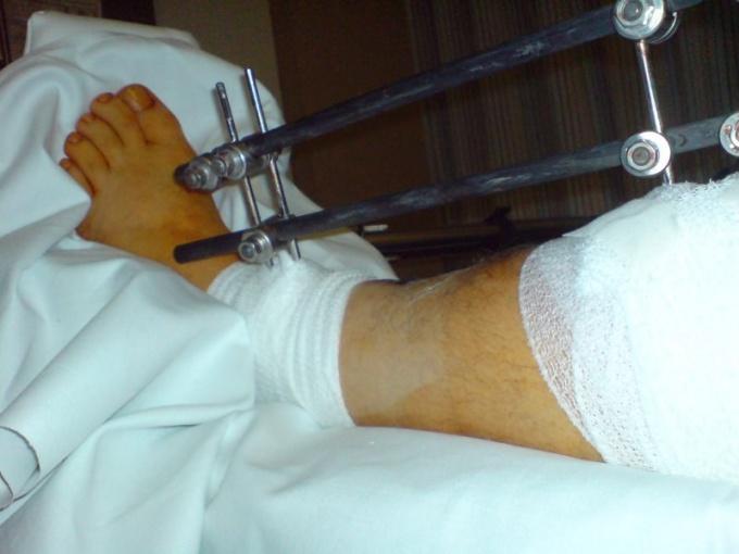 térd sérülés esetén kötést kell felvenni a teknősre)