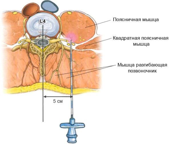 Csontritkulás - Országos Gerincgyógyászati Központ