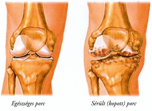 zselatin artrózis külső kezelésére)
