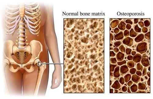 összeomló artrózis kezelés