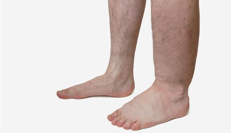 a láb boka fájdalma)