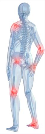 diklofenak ízületi fájdalmak áttekintésére
