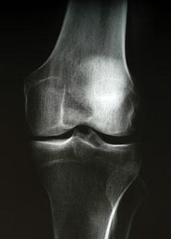 artrózis és röntgen kezelés