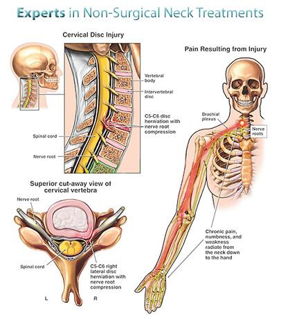 nyaki kenőcs kezelése
