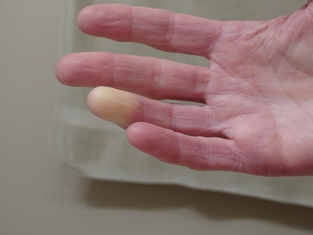 a kezek falának ízületi gyulladása