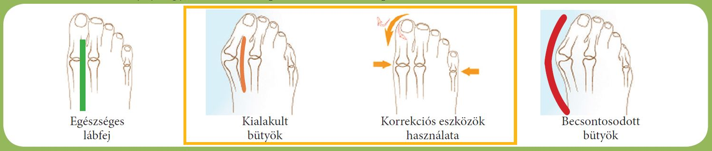 lábujjak ízületei hogyan kell kezelni)