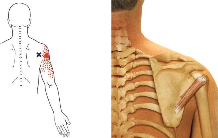 méhnyakos osteochondrozis gyógyszeres kezelés hormonális kenőcs ízületi fájdalmak kezelésére