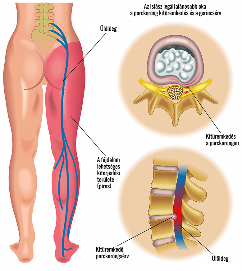 fájdalom a csípőízület csontainál