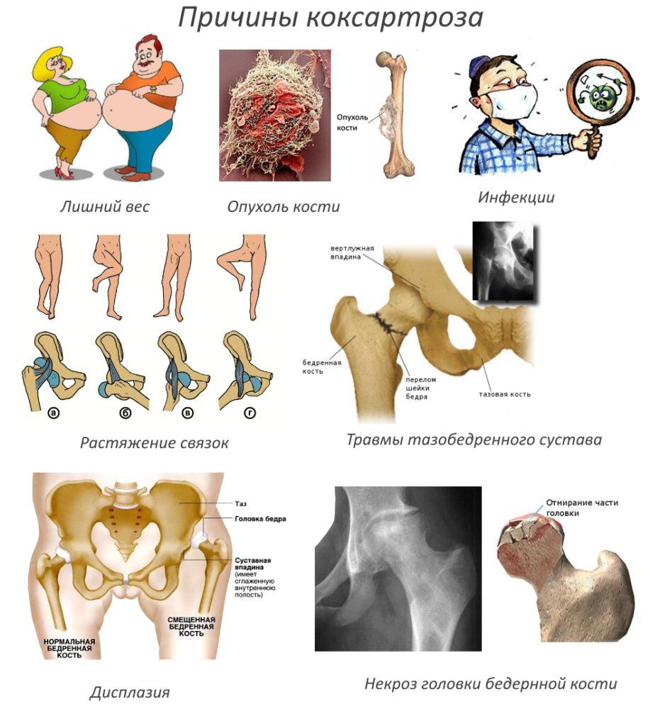 A csípőízület coxarthrosisának okai, tünetei és kezelése - Sérülések
