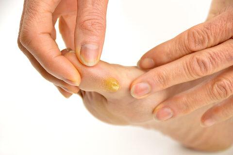 fájdalom a láb kis ujjízületében, mint hogy kezeljék