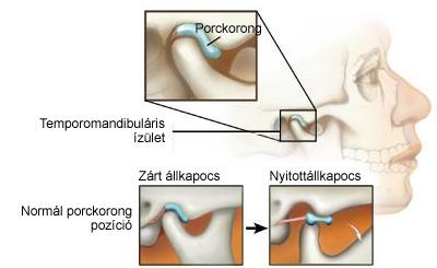 gerincvelői csontok ízületi tünetei)
