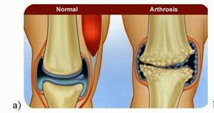 gyógyszer váll artrózis