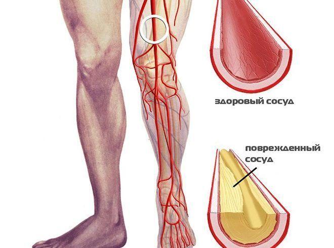 ha a lábak ízületei meggyulladnak, hogyan kell kezelni