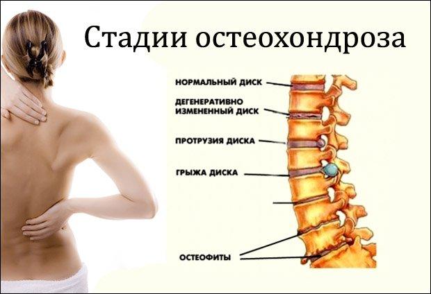 hatékony kenőcs a mellkasi osteochondrozissal szemben)