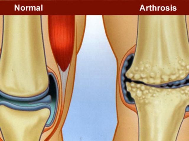 hogyan lehet edzeni térd artrózisával)