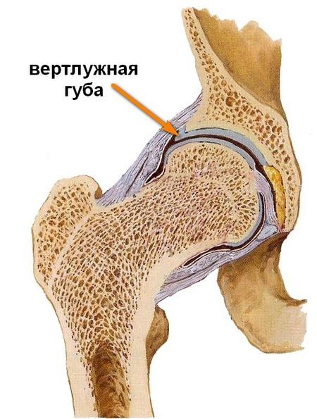 hogyan lehet érzésteleníteni a csípőízület fájdalmát)