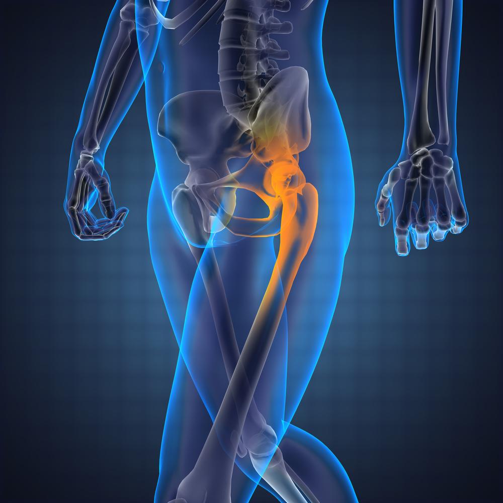 hogyan és hogyan kell kezelni a csípőízületeket