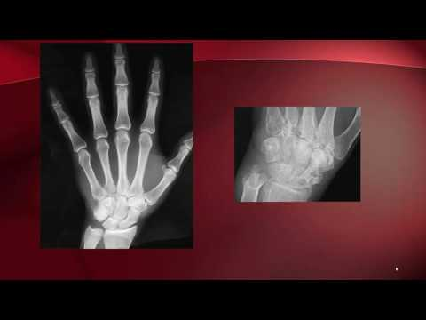 I. fokú ízületi osteoarthritis)