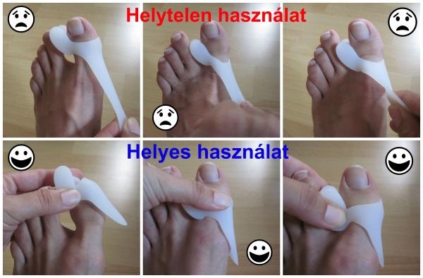 injekciók a lábujjak ízületeiben