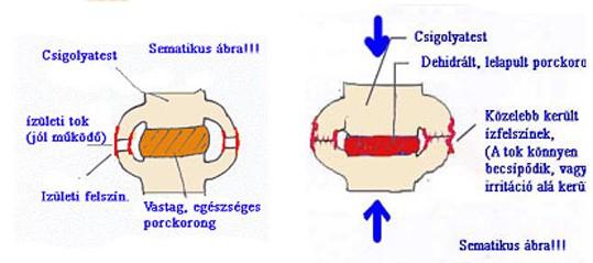 izületi gyulladás vitamin hiány csípőízület kezelésére szolgáló készítmények