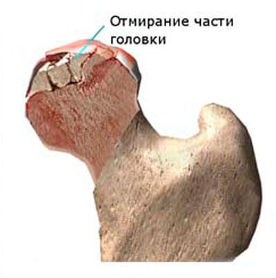 kiküszöböli a csípőízület fájdalmát