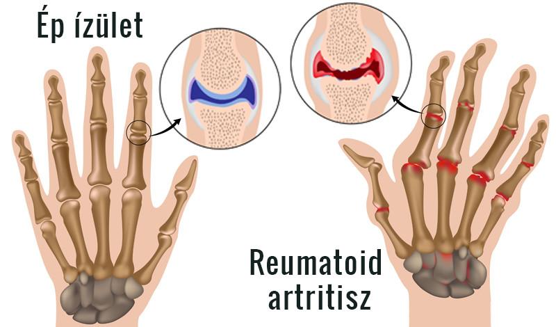 kis ízületek rheumatoid arthritis kezelése)