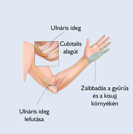 könyök fájdalom és kis ujj zsibbadás)