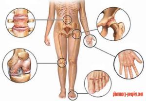 hát- és ízületi fájdalmak ízületi betegség kezelést okoz