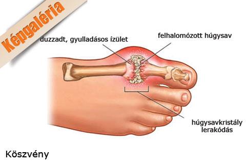 nagy lábujj ízületi gyulladás