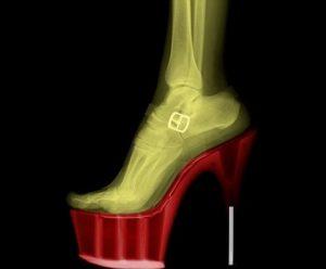 nagyon rossz lábfájdalom az ízületben